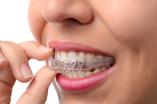 woman putting in invisalign spacers